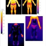 Messung der Hauttemperatur